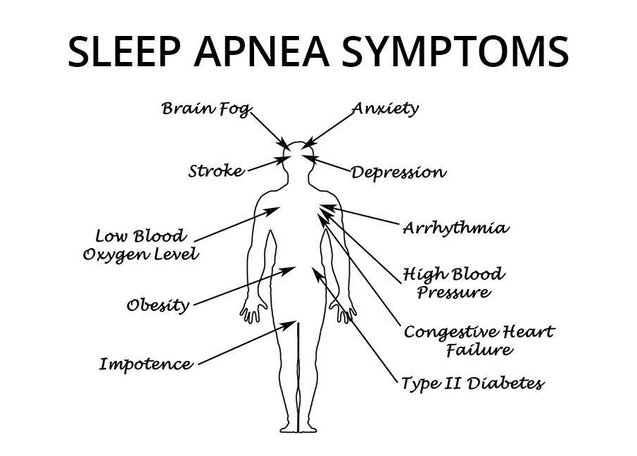 Diagram pointing to parts of the human body affected by Sleep Apnea.